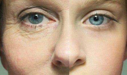 Косметологи разработали технологию омолаживания кожи