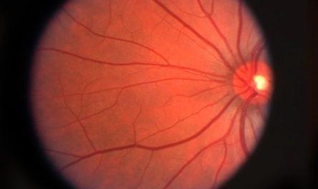 Искусственная сетчатка с живыми клетками поможет восстановить зрение пожилым людям