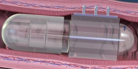 В США разработали необычную замену медицинскому шприцу