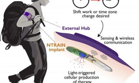 Компактный имплант делает путешествия по миру комфортнее