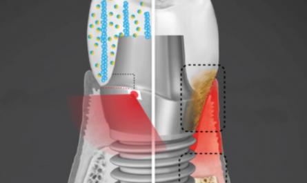 Умный зубной имплант уничтожает бактерии электрошоком